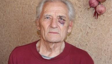 Известный правозащитник севастопольцев был жестоко избит в подъезде собственного дома (видео)