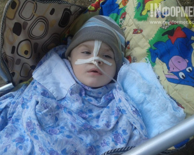 Остановка сердца и отёк головного мозга: в Севастополе ребёнок стал инвалидом после удаления аппендицита