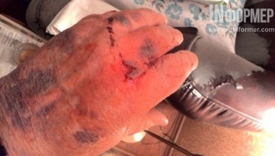 Синяки и кровоподтеки на руках - последствия общения с фельдшером севастопольской «Скорой помощи»