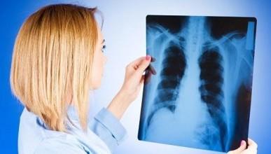 Мероприятия в Севастополе на день борьбы с туберкулезом 24 марта