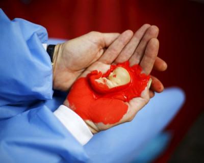 Жертв абортов в России больше, чем погибших во Второй мировой войне!