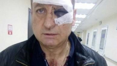 В Крыму зверски избили известного барда (ВИДЕО)