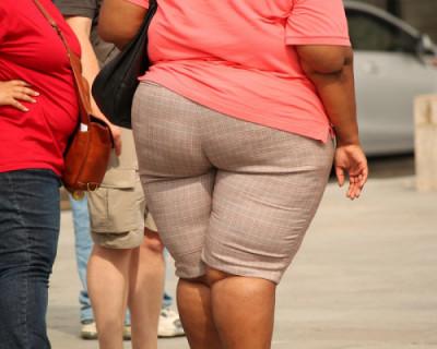 Во сколько лет россиянки чаще страдают от ожирения