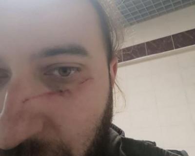 Журналист «РИА Новости» сообщил о побоях на курсах для военных репортеров в Севастополе