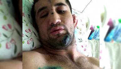 Как и за что избили бойца ММА Расула Мирзаева