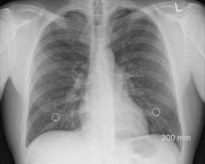 В севастопольском онкодиспансере пройдет акция по профилактике и раннему выявлению рака легких