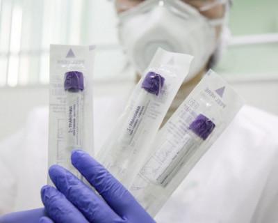 В Крыму зарегистрировано 220 случаев коронавирусной инфекции