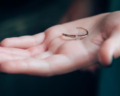Спасатели Севастополя срезали с пальца девочки кольцо