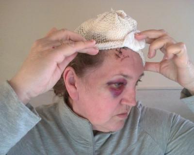"""""""Она упала?!"""" Вот так выглядит Ирина Остащенко после нападения (жуткие фото)"""